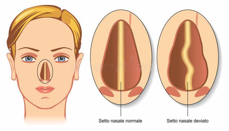 Setto nasale deviato: Di che si tratta?